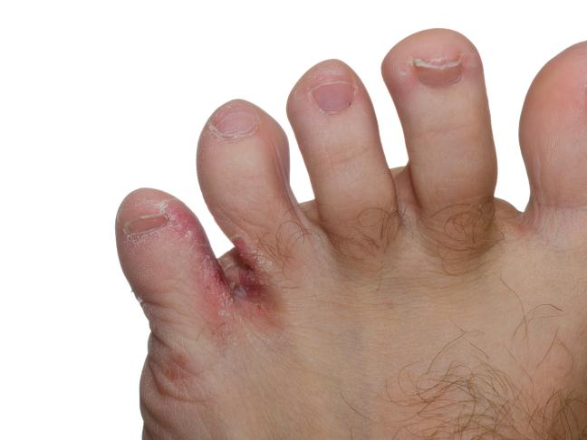 1000+ ideas about Toenail Fungus Pictures on Pinterest ...