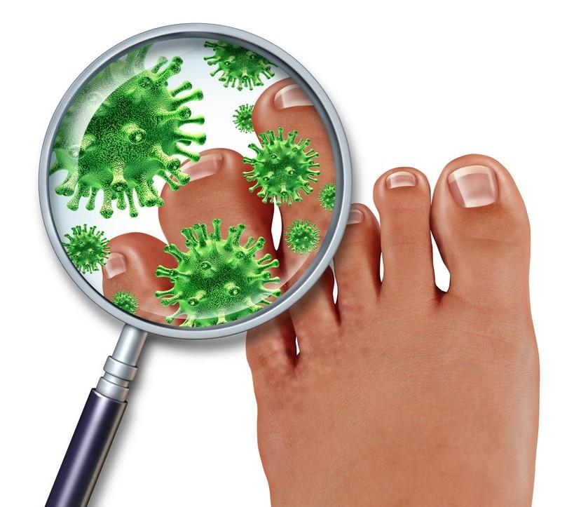 Frieira nos pés
